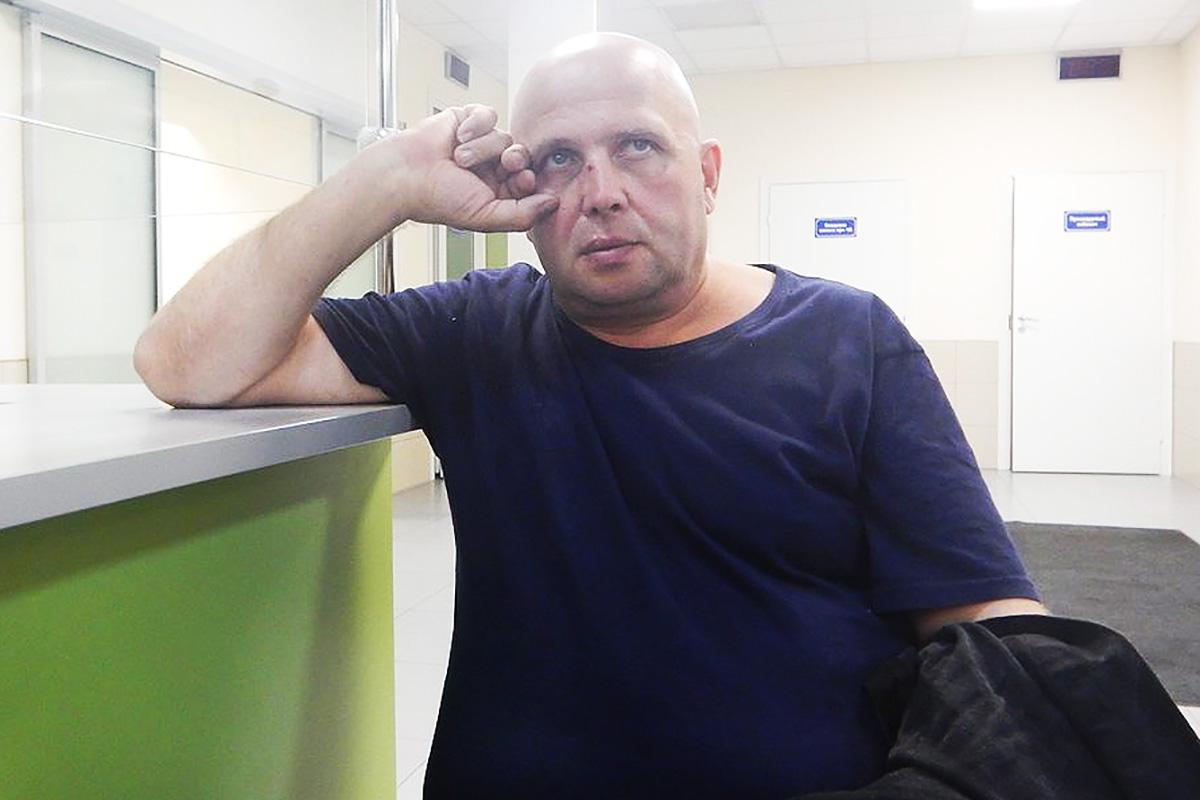 «Онхотел меня убить». Следователь отпустил связанного с«поваром Путина» человека, напавшего наактивиста Иванютенко